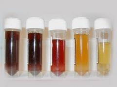 Donkere urine bij een kind