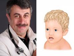 ดร. Komarovsky ในการรักษาดงในปากในเด็ก