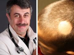 Dr Komarovsky over de oorzaken van haaruitval bij kinderen