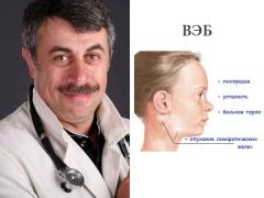 الدكتور كوماروفسكي على فيروس ابشتاين بار في الأطفال
