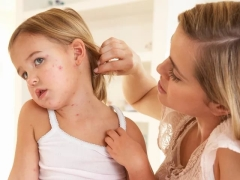 Infektivna egzantema kod djece