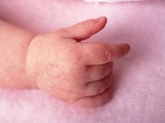 Pelle di marmo nei neonati e nei neonati: cause, sintomi e trattamento