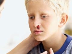 فرفرية نقص الصفيحات عند الأطفال