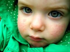 เกิดอะไรขึ้นถ้ามีผื่นบนใบหน้าของเด็ก?
