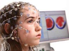 Cosa mostra il cervello EEG nei bambini? Norme e cause delle deviazioni