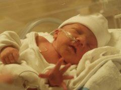 การขาดเลือดของสมองในทารกแรกเกิด