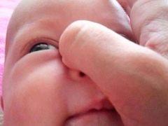 การนวดของคลองน้ำตาสำหรับทารกแรกเกิดและทารก