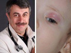 الدكتور كوماروفسكي حول علاج شلون في الأطفال
