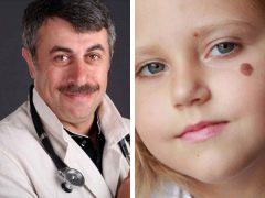ดร. Komarovsky เกี่ยวกับโมลในเด็ก
