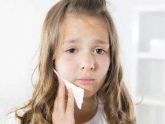 مشاكل الأسنان عند الأطفال والكبار من وجهة نظر علم النفس الجسدي