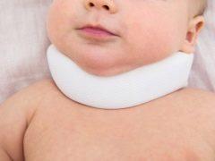 Tekenen en symptomen van torticollis bij pasgeborenen en baby's