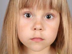 Липса при деца: от признаци на лечение