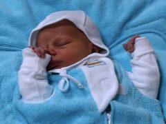 Galactosemia pada bayi baru lahir dan kanak-kanak