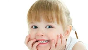 Macchie bianche sui denti di un bambino