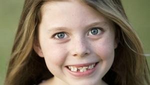 Denti curvi nei bambini