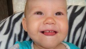 Argentatura di denti da latte