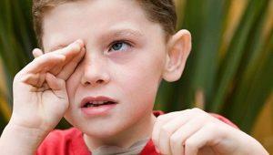 Bacteriële conjunctivitis bij kinderen