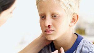 Porpora trombocitopenica nei bambini