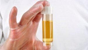โปรตีนในปัสสาวะในระหว่างตั้งครรภ์: บรรทัดฐานและสาเหตุของการเบี่ยงเบน