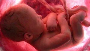 Bilakah bayi dalam rahim mula mendengar?