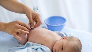 สายสะดือของทารกแรกเกิดมักจะออกในวันใดและขึ้นอยู่กับอะไร?