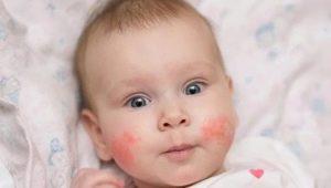Cause psicosomatiche di eczema nei bambini e negli adulti