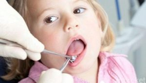 Psicosomatica della malattia parodontale negli adulti e nei bambini
