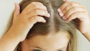 Psicosomatica forfora in bambini e adulti
