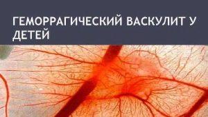 Vascularite hémorragique chez les enfants: des symptômes au traitement