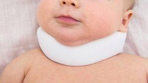 Signes et symptômes du torticolis chez le nouveau-né et le nourrisson