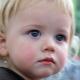 Diathesis ในเด็กและวิธีการในการรักษา