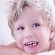 Bruxism: bayi mengisar gigi