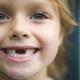 เด็ก ๆ มีฟันอะไร