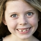 ฟันคุดในเด็ก