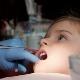 Trattamento della pulpite nei denti da latte nei bambini