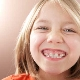 แผ่นสำหรับจัดแนวฟันในเด็ก
