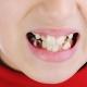 Cause della placca nera sui denti dei bambini