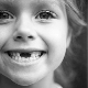โครงการสูญเสียฟันน้ำนมในเด็ก