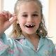 การกำจัดนมและฟันกรามในเด็ก