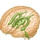 การขยายตัวของโพรงในสมองในทารก