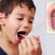 อาการการรักษาและป้องกันโรคคอตีบในเด็ก