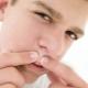 วิธีการรักษาสิววัยรุ่นในเด็กผู้ชาย?