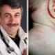 Dr Komarovsky over herpes type 6 bij kinderen