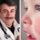 ดร. Komarovsky เกี่ยวกับแก้มสีแดงในเด็ก