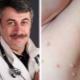 Dr Komarovsky mengenai rawatan kanak-kanak dengan molluscum contagiosum