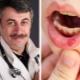 Dr. Komarovsky sulla stomatite