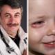 Dr. Komarovsky over hoe gerst te behandelen voor de ogen van een kind