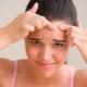 Trattamento dell'acne nei bambini