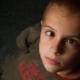 Cause e trattamento dello strabismo nei bambini