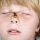 วิธีการกำจัดอาการบวมและอาการคันในเด็กหลังจากแมลงกัด?